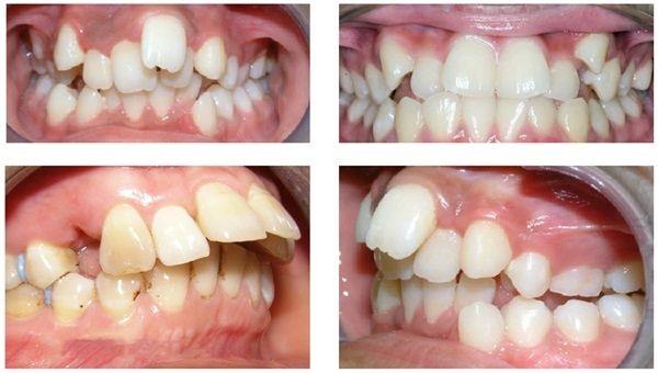 Chi phí niềng răng vô hình giá bao nhiêu tiền