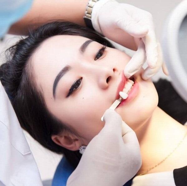 Chi phí trồng răng khểnh giá bao nhiêu tiền