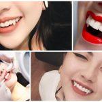 Bật mí chi phí đắp răng nanh bao nhiêu tiền bạn không nên bỏ lỡ