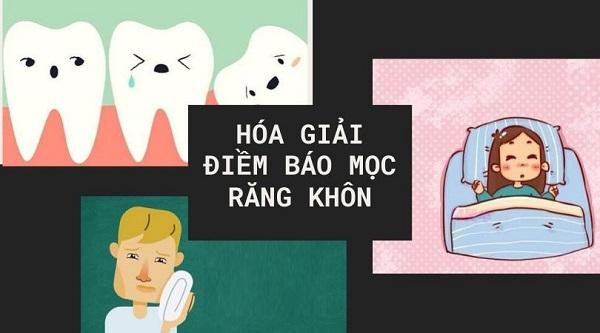 điềm báo khi mọc răng khôn, mơ thấy mọc răng khôn