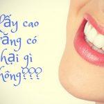 Lấy cao răng có hại gì không? Nỗi băn khoăn của không ít người cần được lý giải