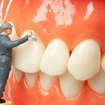 Lấy cao răng có tẩy trắng răng được hay không?