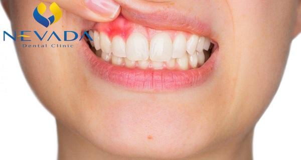 thuốc chữa áp xe răng, thuốc điều trị áp xe răng, thuốc kháng sinh điều trị áp xe răng, áp xe răng uống thuốc gì, áp xe chân răng uống thuốc, áp xe chân răng uống thuốc gì
