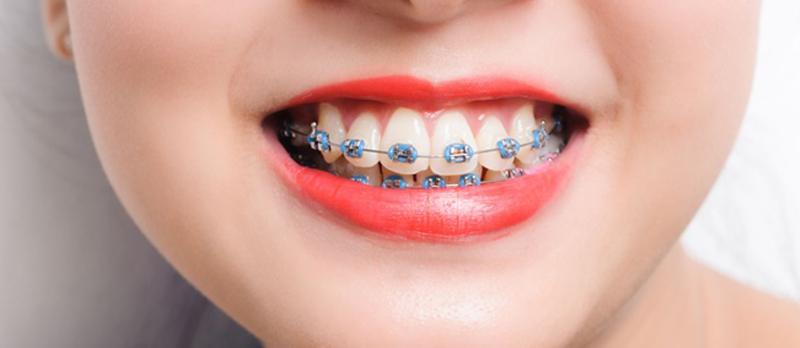 niềng răng bắt vít, bắt vít niềng răng để làm gì, bắt vít niềng răng có đau không, niềng răng có cần bắt vít,bắt vít trong niềng răng,niềng răng có cần bắt vít,bắt vít trong niềng răng, niềng răng có cần bắt vít, niềng răng bắt vít, làm gì, đau không,tại sao