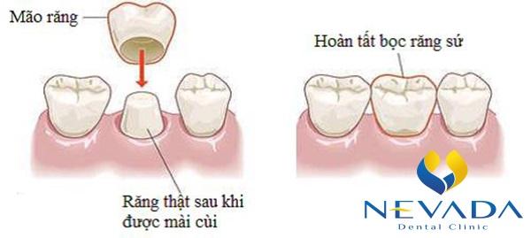 bọc răng sứ cho răng cửa hô, bọc răng sứ cho răng cửa bị hô, bọc sứ răng cửa hô, thẩm mỹ răng cửa hô giá bao nhiêu, răng cửa hô nên làm gì, bọc răng sứ cho răng hô giá bao nhiêu, làm răng sứ chỉnh răng cửa hô