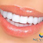 Bọc răng sứ cho răng cửa bị hô | Giải pháp cho nụ cười duyên dáng hơn