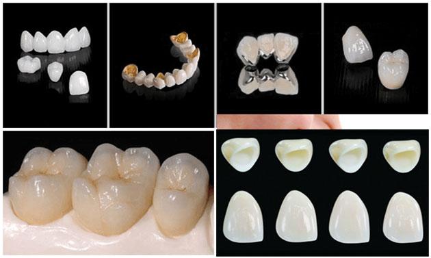 bọc răng sứ chữa hô, bọc răng sứ trị hô, bọc răng sứ cho hàm hô, chữa răng hô bằng cách bọc răng sứ