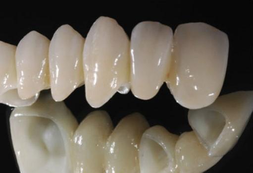 giá răng sứ đức, răng sứ đức giá bao nhiêu, giá răng sứ của đức, răng toàn sứ của đức, các loại răng sứ của đức, cách nhận biết răng sứ của đức, giá bọc răng sứ đức, răng sứ của đức, bọc răng sứ của đức, giá răng sứ của đức, các loại răng sứ của đức, răng toàn sứ của đức, cách nhận biết răng sứ của đức