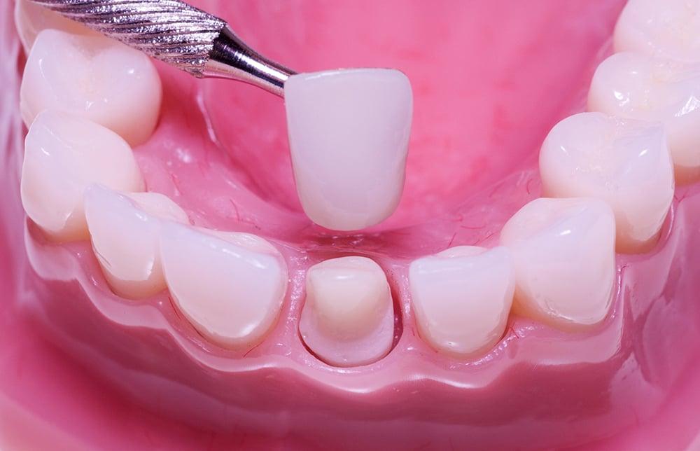 bọc răng sứ có niềng răng được không, bọc răng sứ rồi có niềng được không, bọc răng sứ xong có niềng được không, răng đã bọc sứ có niềng được không