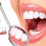 Cảnh báo bọc răng sứ giá rẻ tại Hà Nội và Thành phố Hồ Chí Minh để tránh tiền mất tật mang