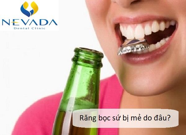 khắc phục răng sứ bị mẻ, răng sứ bị mẻ phải làm sao