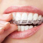 Chi phí niềng răng 2 hàm là bao nhiêu tiền?  Liệu có đáng để bạn lấy lại nụ cười rạng rỡ?