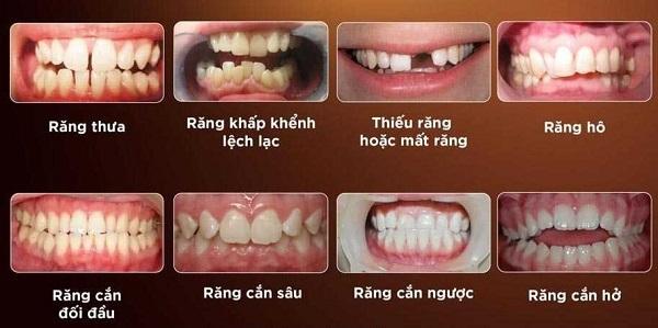 chi phí niềng răng 2 hàm, giá niềng răng 2 hàm, niềng răng 2 hàm bao nhiêu tiền, niềng răng 2 hàm giá bao nhiêu, niềng răng 2 hàm hết bao nhiêu tiền
