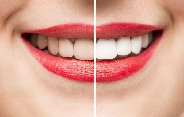 Tẩy trắng răng,tẩy trắng răng có hại không webtretho, Có nên tẩy trắng răng không webtretho, tẩy trắng răng, webtretho, hại, có nên,