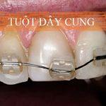 Dấu hiệu nhận biết niềng răng hỏng – Những điều cần lưu ý!