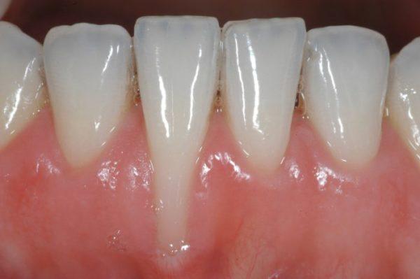 niềng răng hỏng,dấu hiệu nhận biết niềng răng hỏng, những ca niềng răng hỏng, những ca niềng răng bị hỏng, Niềng răng không thành công, niềng răng hỏng, dấu hiệu, hậu quả