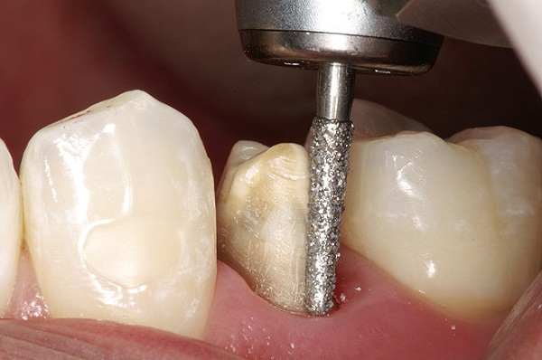 mài răng hô, mài răng hô nhẹ, mài răng hô giá bao nhiêu, mài răng hô bọc sứ, mài răng cửa hô, mài răng chữa hô, mài răng chỉnh hô, mài răng cửa bị hô, chi phí mài răng hô, mài răng cho bớt hô