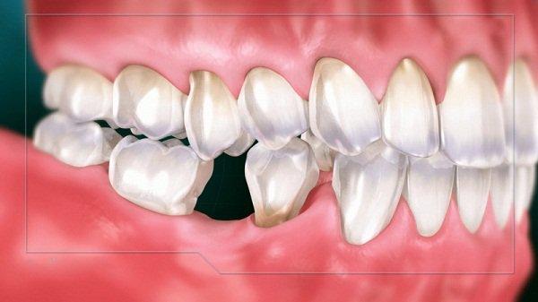 người có 26 cái răng, thiếu răng, mất răng, bọc răng sứ, cấy ghép răng implant, hàm giả tháo lắp