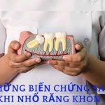 Những biến chứng sau khi nhổ răng khôn | Những lầm tưởng có thể làm bạn nguy hiểm
