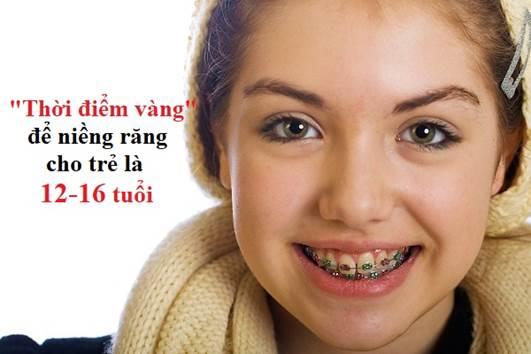 niềng răng, thời gian niềng răng bao lâu thì có kết quả, niềng răng bao lâu thì xong, thời gian niềng răng bao lâu, niềng răng bao lâu thì có kết quả, niềng răng bao lâu thì tháo, niềng răng bao lâu thì hết đau, niềng răng bao lâu thì ăn được cơm, niềng răng bao lâu thì ăn được bình thường, 19 tuổi niềng răng bao lâu, niềng răng bao lâu, ăn được, bình thường, hết đau, kết quả, độ tuổi,