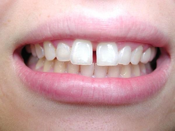 niềng răng cửa, chi phí niềng răng cửa thưa giá bao nhiêu tiền, niềng răng cửa thưa, niềng răng cửa thưa mất bao lâu, chi phí niềng răng cửa thưa, niềng răng cửa bị thưa, niềng răng cửa thưa giá bao nhiêu, niềng răng cửa bị thưa bao nhiêu tiền, giá niềng răng cửa thưa, niềng răng cửa thưa bao lâu, niềng răng cửa thưa, chi phí niềng răng thưa