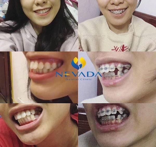 Chi phí niềng răng hô hàm trên bao nhiêu tiền, Niềng răng hô hàm trên bao nhiêu tiền, chi phí niềng răng hô hàm trên