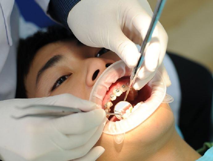 niềng răng bị hỏng, niềng răng hỏng, dấu hiệu niềng răng hỏng, những ca niềng răng hỏng, những ca niềng răng bị hỏng, Niềng răng không thành công