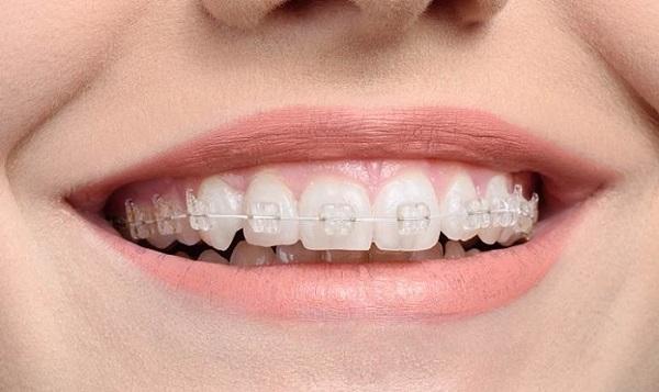 Chi phí niềng răng mắc cài sứ dây trong
