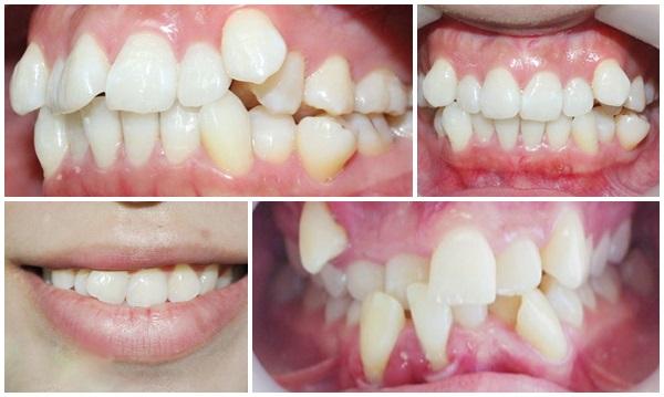 răng mọc ngược, răng mọc ngược có nguy hiểm không, răng mọc ngược trên lợi, răng mọc ngược lên mũi, hiện tượng răng mọc ngược ở trẻ, hình ảnh răng mọc ngược, răng mọc ngược là gì, răng mọc ngược vào trong, xử lý răng mọc ngược, răng mọc ngược hàm, chân răng mọc ngược, xem răng mọc ngược, niềng răng mọc ngược, hiện tượng răng mọc ngược