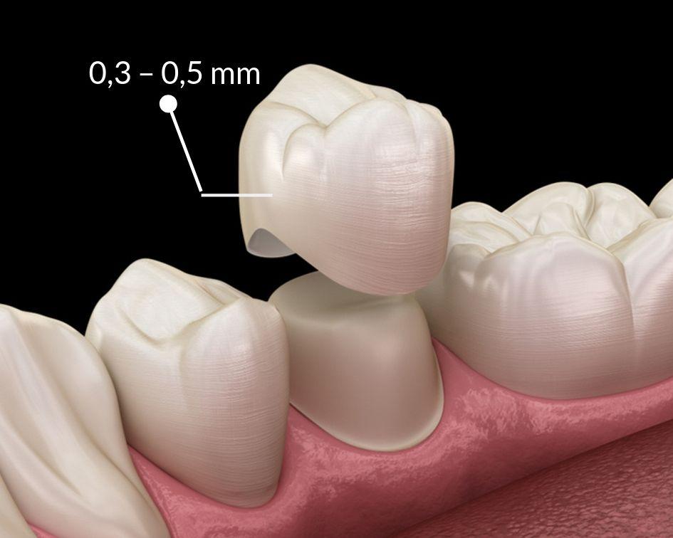 bọc răng sứ cho răng cửa bị mẻ, bọc răng sứ cho răng bị mẻ, bọc răng sứ 2 răng cửa bị mẻ, bọc sứ răng cửa bị mẻ, phục hồi răng mẻ, Răng cửa bị mẻ phải làm sao