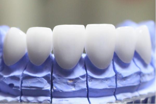 Răng sứ HT Smile giá bao nhiêu?