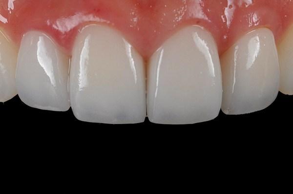 răng sứ katana, răng sứ katana giá rẻ, răng sứ katana là gì, răng sứ katana giá bao nhiêu, răng sứ katana có mấy loại, răng sứ katana zirconia giá bao nhiêu, răng sứ katana bao nhiêu tiền, giá răng sứ katana, so sánh răng sứ katana và venus, làm răng sứ katana giá bao nhiêu, bọc răng sứ katana giá bao nhiêu, độ bền của răng sứ katana, bọc răng sứ katana, giá bọc răng sứ katana, bảng giá răng sứ katana, giá răng sứ katana zirconia