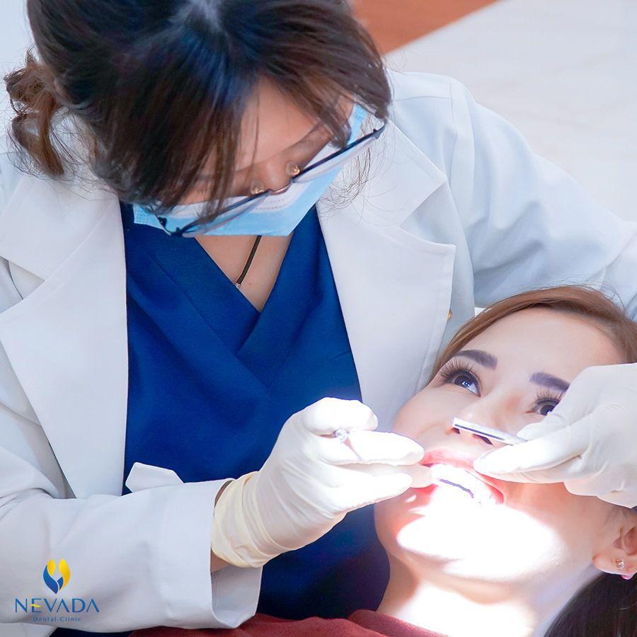 đánh số răng, cách đánh số răng sữa, cách đánh số răng trẻ em, quy định đánh số răng, đánh số răng như thế nào, cách đánh số răng người lớn, quy tắc đánh số răng,