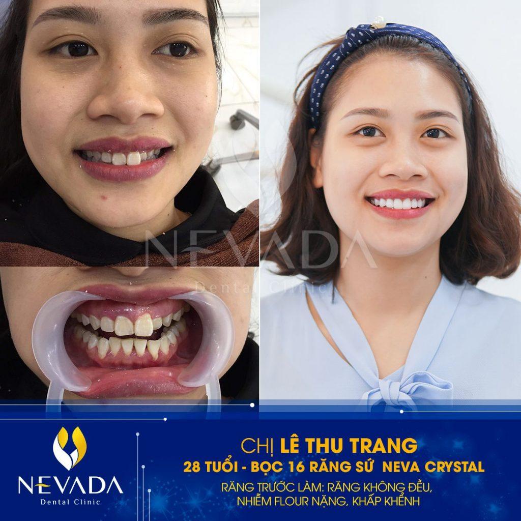 răng sứ neva crystal