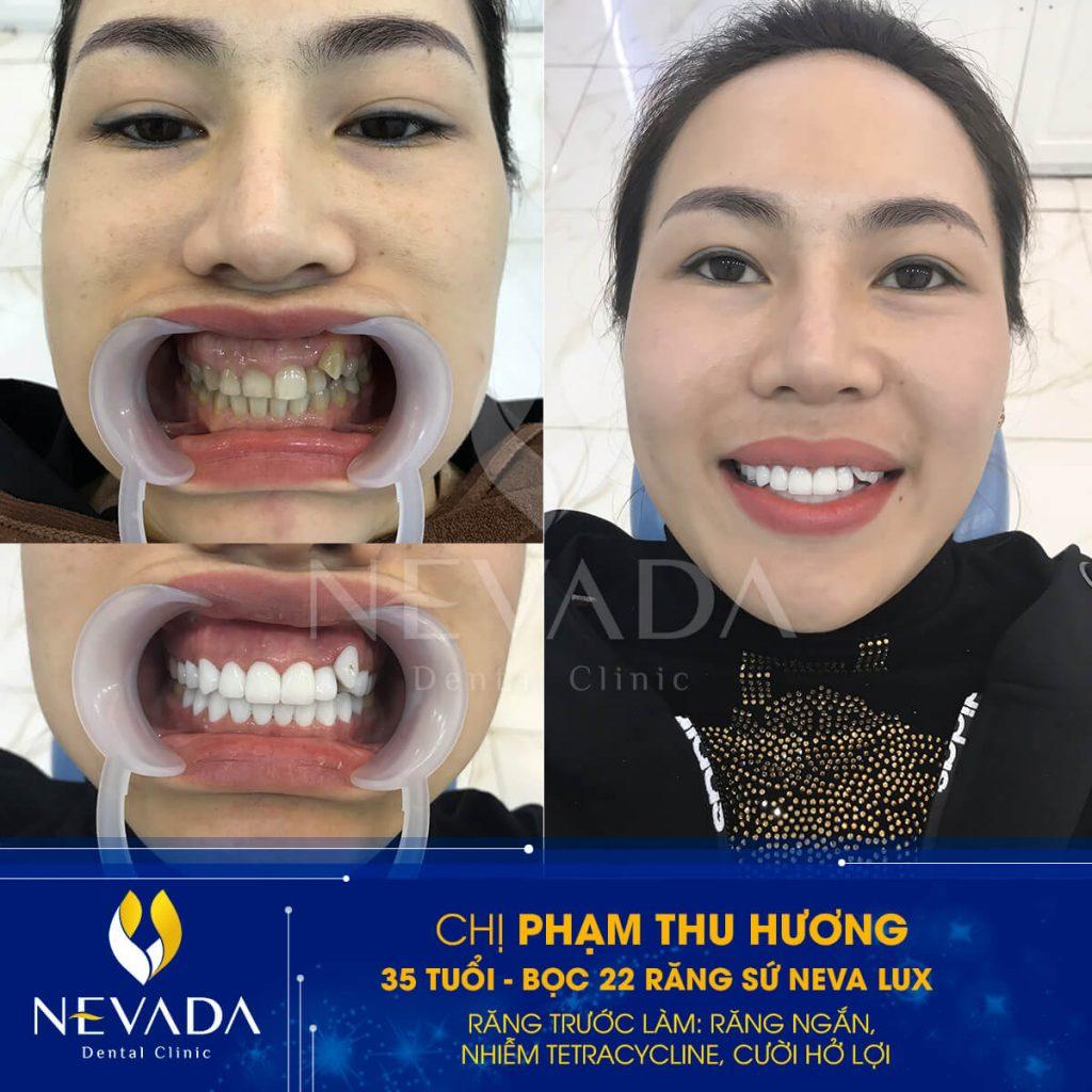 răng sứ neva lux