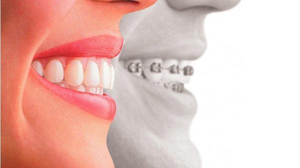 Giá sửa răng hô bao nhiêu tiền, sửa răng hô bao nhiêu tiền, sửa răng hô, thẩm mỹ răng hô bao nhiêu tiền, phẫu thuật răng hô hết bao nhiêu tiền, chỉnh sửa răng hô, phẫu thuật hàm hô bao nhiêu tiền, phẫu thuật hàm hô bao nhiêu tiền, chi phí sửa răng hô, giá sửa răng hô, sua rang bao nhieu tien, niềng 2 răng cửa bị hô, chỉnh răng hô giá bao nhiêu, chỉnh răng hô, sửa răng hô hết bao nhiêu tiền, chữa răng hô hết bao nhiêu tiền