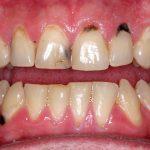 Mẹo nhỏ răng xinh: Tại sao nướu răng bị đen? Cách làm hồng nướu bị thâm đen tại nhà