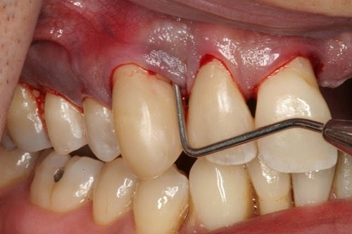 nướu răng bị đen, nướu răng bị đen ở trẻ em, chân nướu răng bị đen, nướu răng bị sưng đen, nướu răng trẻ bị đen, nướu răng chó bị đen, tại sao nướu răng bị đen, lợi chân răng bị đen, nguyên nhân nướu răng bị đen, cách trị nướu răng bị đen