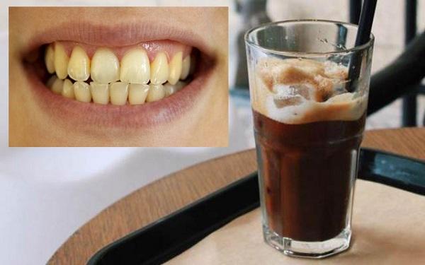 Tại sao răng vàng ố và có cao răng?
