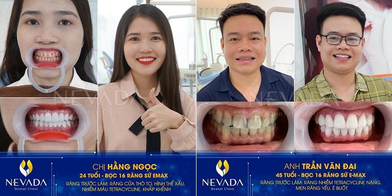 Những trường hợp nào có thể bọc răng sứ