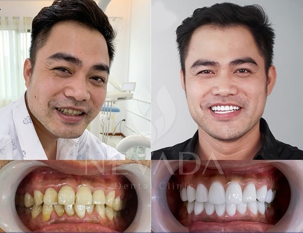 Ưu điểm bọc răng sứ, Ưu điểm của bọc răng sứ, Ưu điểm của bọc răng sứ thẩm mỹ, ưu điểm bọc răng sứ, Ưu nhược điểm bọc răng sứ, ưu nhược điểm của bọc răng sứ, ưu nhược điểm khi bọc răng sứ, ưu và nhược điểm của bọc răng sứ, ưu nhược điểm của việc bọc răng sứ, ưu nhược điểm của bọc răng sứ thẩm mỹ, nhược điểm bọc răng sứ, khuyết điểm của bọc răng sứ, nhược điểm khi bọc răng sứ, nhược điểm của việc bọc răng sứ, nhược điểm bọc răng sứ
