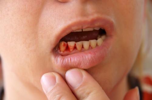 viêm nha chu ở trẻ em,viêm nha chu ở trẻ nhỏ,bệnh viêm nha chu ở trẻ em,điều trị viêm nha chu ở trẻ em,viêm nha chu ở trẻ