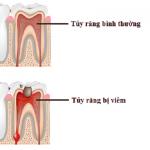 Viêm tủy răng cấp là gì? Điều trị viêm tủy răng cấp hiệu quả