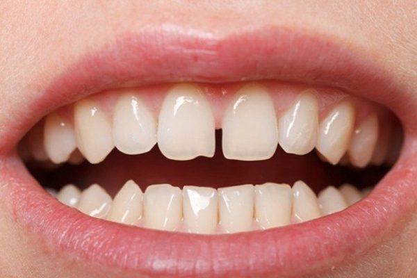 xem bói răng, xem bói răng thưa, xem bói răng cửa, xem bói răng cửa thưa, xem bói răng khểnh, xem bói răng hô, xem bói răng ngắn, xem bói hàm răng, xem bói về răng, xem bói qua răng