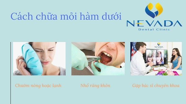 mỏi hàm dưới, bị mỏi hàm dưới, đau mỏi hàm dưới