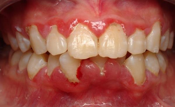 u lợi răng, u lợi, u lợi phì đại, u lợi sùi, u lợi khe, bệnh u lợi, bị u lợi, cắt u lợi, hình ảnh u lợi, u lợi có nguy hiểm không, u lợi là gì, u lợi ở trẻ em, u lợi xơ