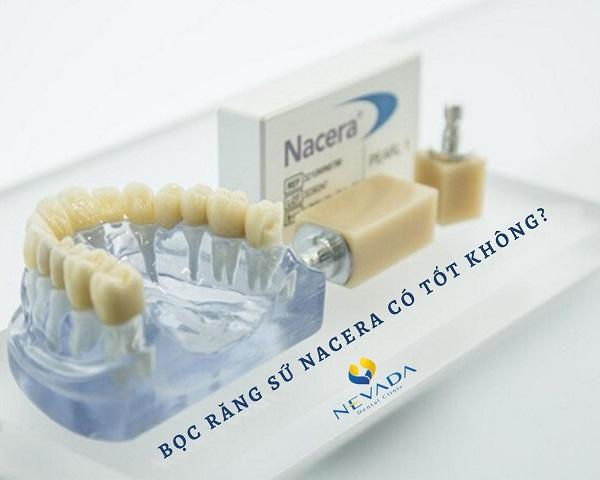bọc răng sứ nacera có tốt không, bọc răng sứ nacera