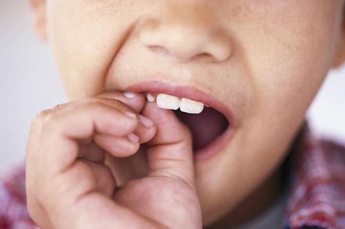 cách bảo quản răng sữa tại nhà, cách bảo vệ răng sữa cho bé, bảo quản răng sữa, cách bảo quản răng sữa, cách bảo quản răng sữa sau khi nhổ, cách bảo quản răng sữa cho bé, bảo quản răng sữa bằng cách nào, bảo quản răng sữa như thế nào, bảo quản răng sữa của con như thế nào, cách bảo quản răng sữa làm tế bào gốc, cách bảo quản răng sữa trẻ em, cách bảo quản răng sữa cho con, cách bảo quản răng sữa để giữ tế bào gốc, cách bảo quản răng sữa của bé, cách bảo quản răng sữa của trẻ, cất giữ răng sữa như thế nào, cách giữ răng sữa cho trẻ, cách bảo quản răng đã nhổ, bảo quản răng sữa tế bào gốc