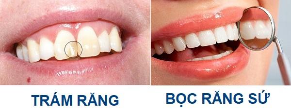 cách phục hồi răng mẻ