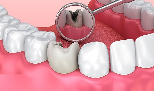 cách phục hồi răng sâu, phục hồi răng sâu, phục hồi răng sâu tại nhà, tự phục hồi răng sâu, cách phục hồi răng bị sâu